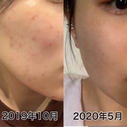 6カ月間ガチで検証! 広告でよく見る「b.glen(ビーグレン)」でニキビ肌は治るか⁉︎
